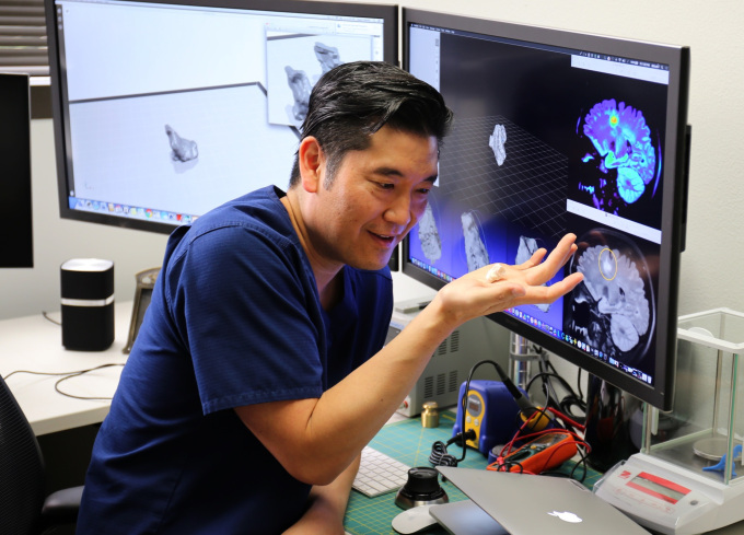 3D printing brain scans helps doctors with a tricky diagnosis